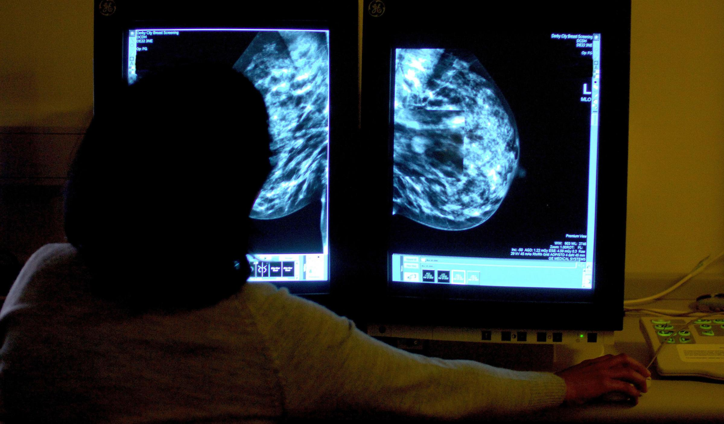 Breast cancer drug approved for NHS England